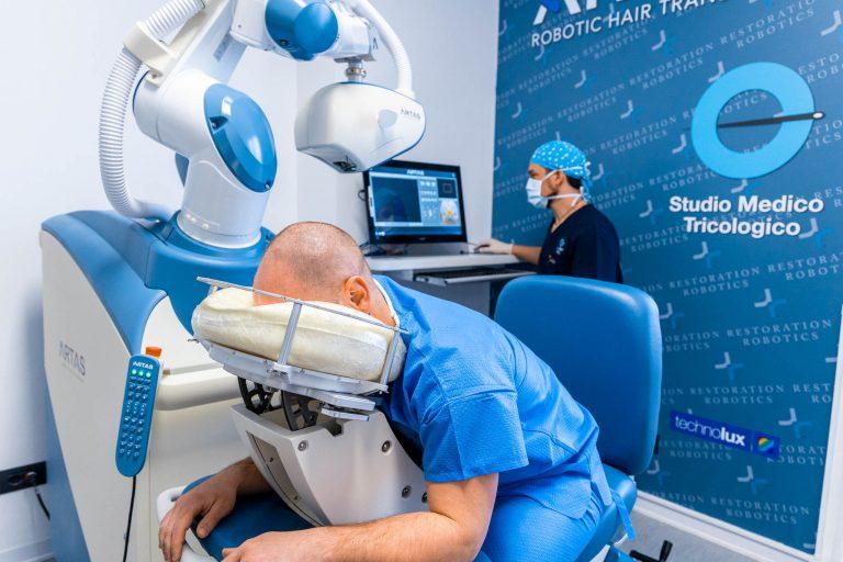 Il Dr. Gatti Jonatann alla console del sistema ARTAS prima di iniziare l'intervento di trapianto di capelli robotizzata