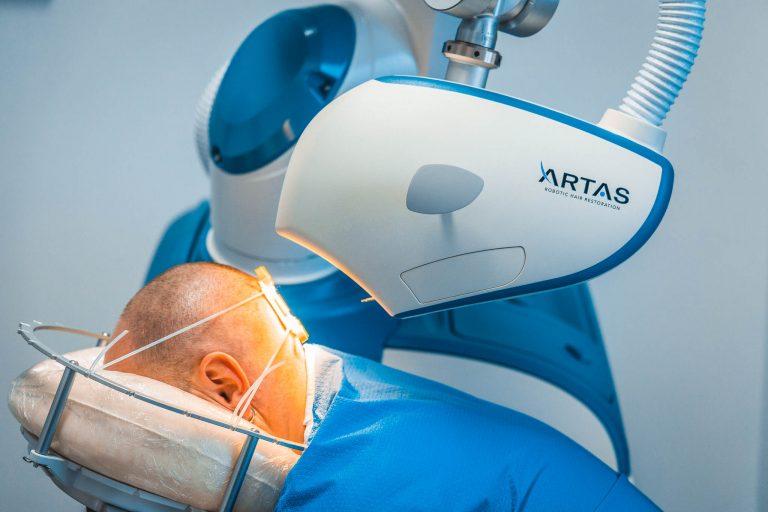Il sistema ARTAS per il trapianto robotizzato di capelli